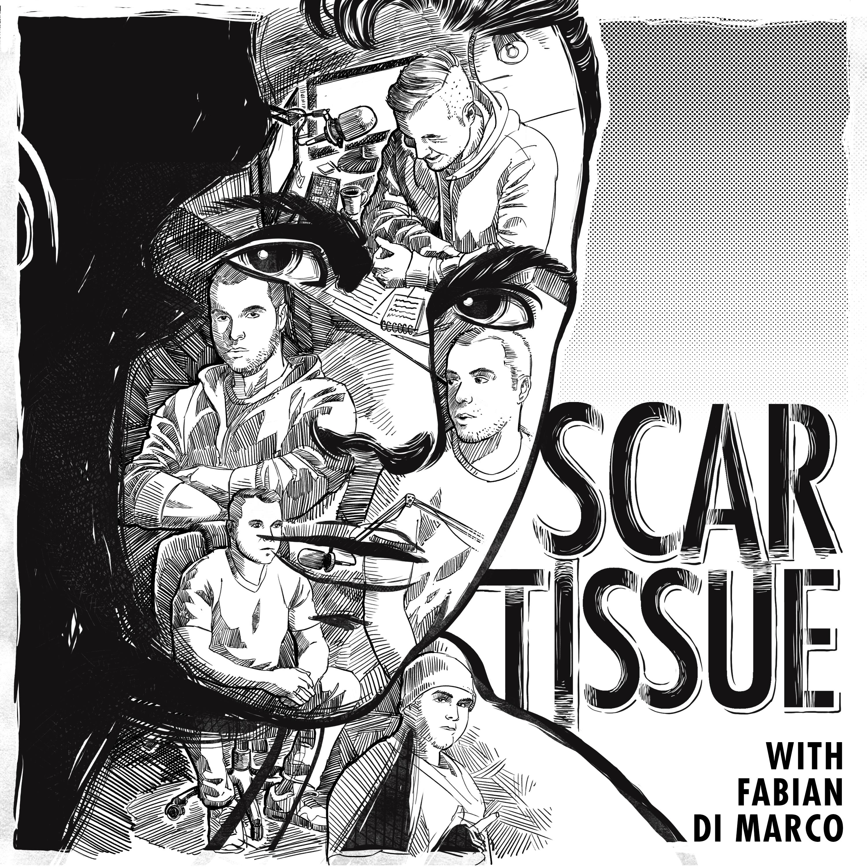 Scar Tissue With Fabian Di Marco